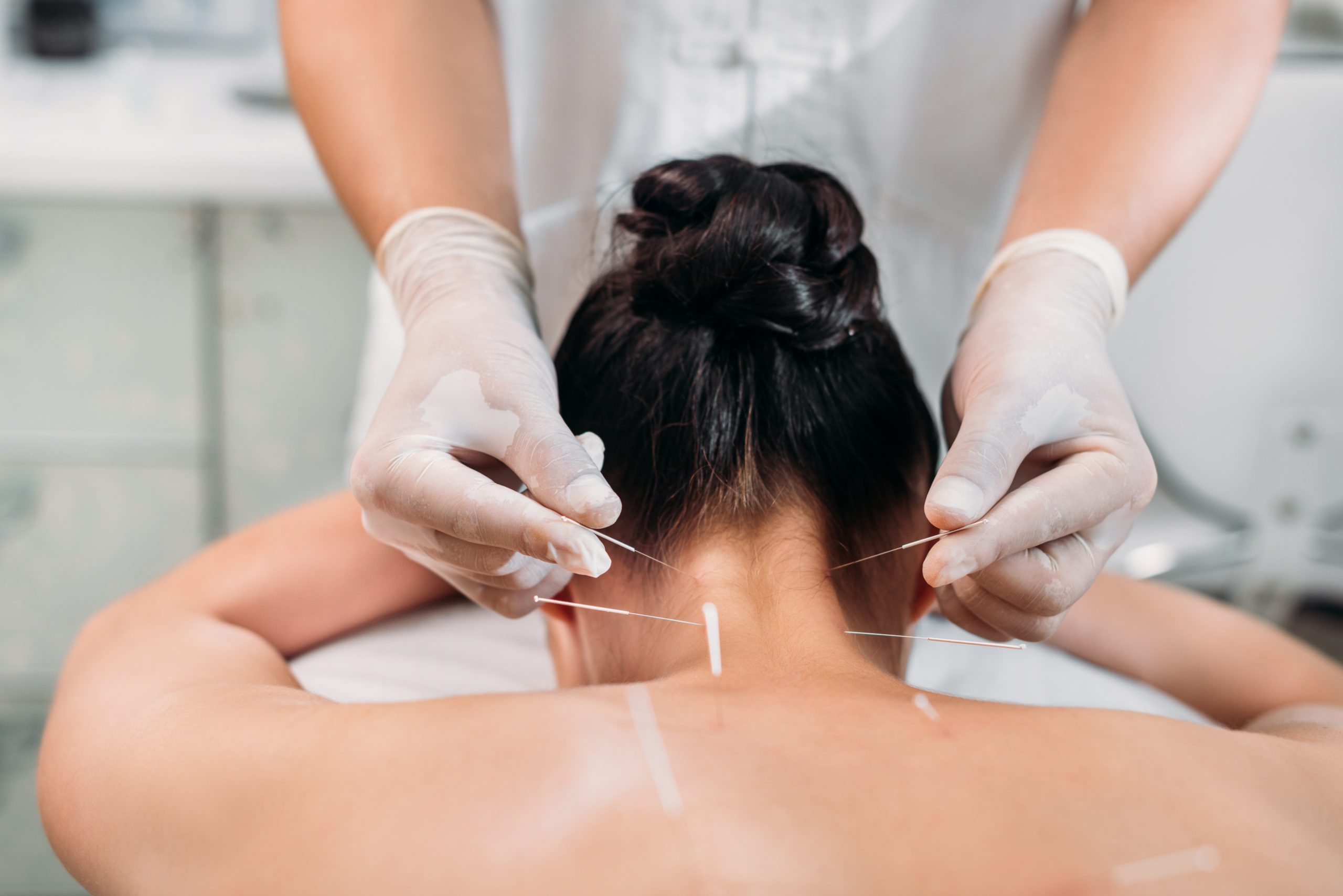 Whitby Acupuncture